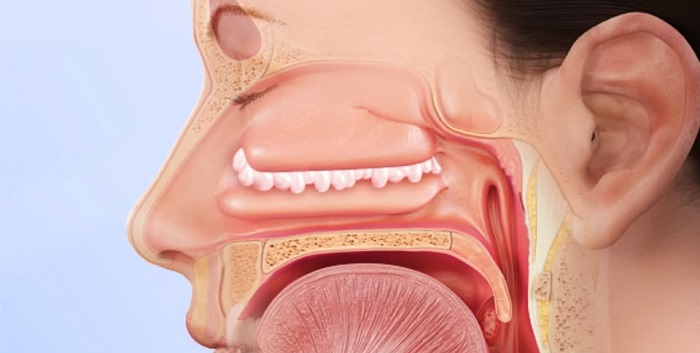 intervento papilloma nasale