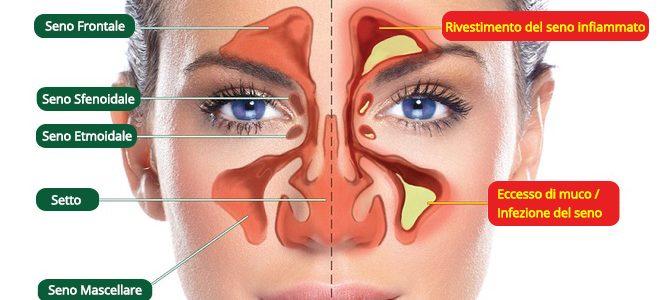 papilloma al naso sintomi