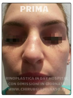 big_rinoplastica-in-day-hospital-foto-prima-2_primadopo_138_1UCEb.jpg